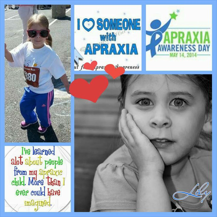 Faces of Apraxia