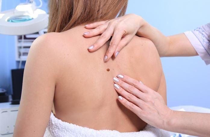 #Cancer de la peau : l'ablation des ganglions inutile - Pourquoi Docteur ?: Pourquoi Docteur ? Cancer de la peau : l'ablation des ganglions…
