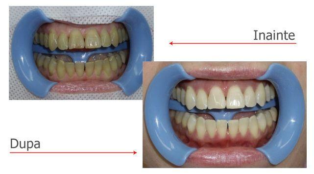 Clinica dentale in Romania  per tutti ! Vi invitiamo a vedere di più qui - il nostro studio dentistico - e contattaci subito  per avere denti belli!!  http://www.intermedline.com/dental-clinics-romania/ #clinicadentale #clinicadentaleinRomania #clinicaodontoiatrica #clinicaodontoiatricainRomania studiodentistrico #studiodentisticoinRomania #clinichedentali #clinichedentaliinRomania #turismodentale #turismodentaleinRomania #turismoodontoiatrico #turismoodontoiatricoinRomania #turismomedico