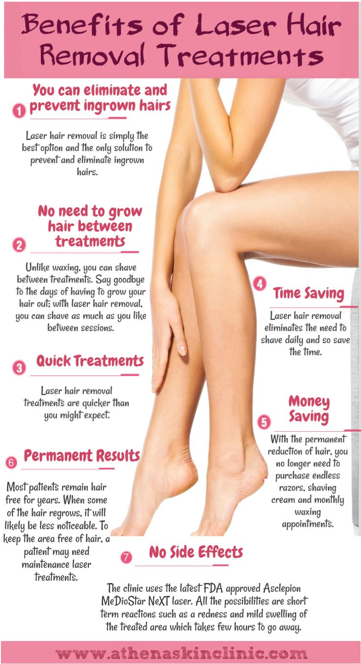 25+ best ideas about Laser hair removal on Pinterest
