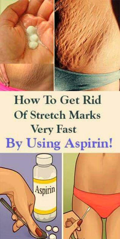How To Get Rid Of Stretch Marks Very Fast By Using Aspirin