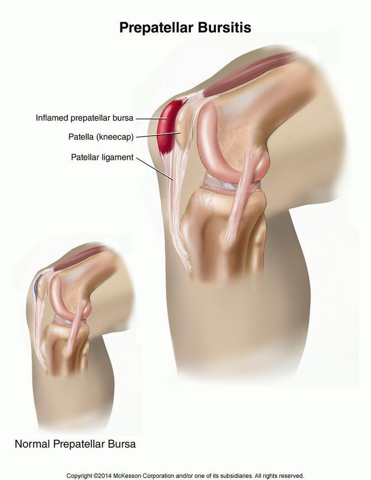 21 best Shoulder Recovery images on Pinterest | Rotator cuff ...