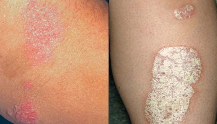 psoriasis skin disease treatment in hindi