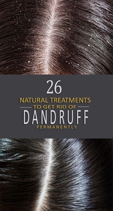 11 Best Home Remedies To Get Rid Of Dandruff Permanently