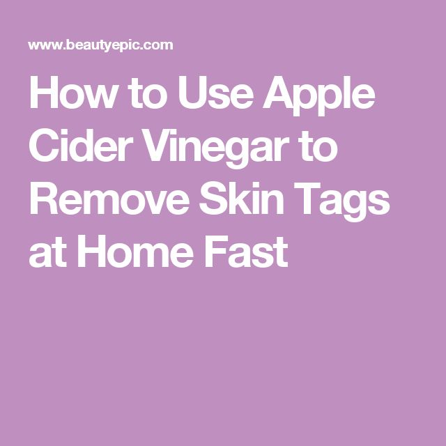 How to Use Apple Cider Vinegar to Remove Skin Tags at Home Fast