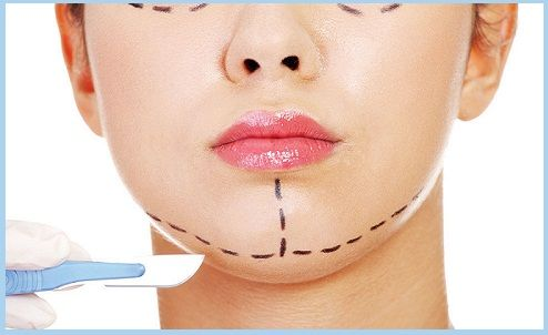 Are you looking for #Chin   #Reduction   #surgery?? #Chin Reshaping   Surgery is a simple #procedure   to give good impact to  #facial  features that can #enhance  your #beauty   as well as self-esteem. Many people have undergo this surgery under the consultation of #Dr  #Raja  #Banerjee     ( #Cosmetic   #surgeon   ) MBBS, MS, M Ch  (#plastic surgery  ) in Gurgaon & got satisfied results. For more details call - 099117 62440