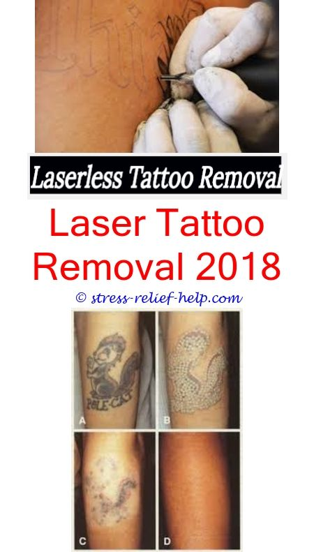Laser Tattoo Removal Machine How To Remove Tattoo At Home Fast Tattoo Removal Beaumont Tx Tattoo Removal Cost Does Laser Tattoo Removal Cause Hair Loss