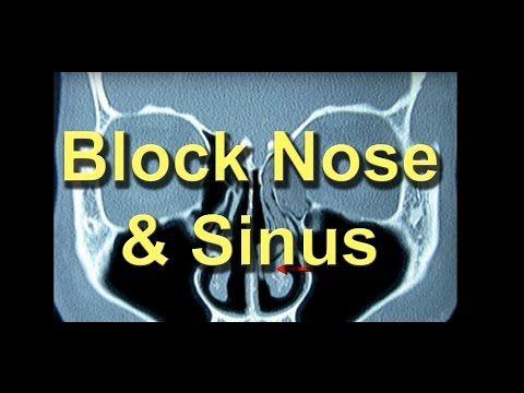 Nez bouché chronique - Définition, causes et traitements -