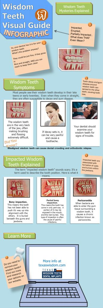 Impacted wisdom teeth infographic. Children's Dentistry, pediatric dentist in Bountiful, UT @ www.utahchildrensdentistry.com