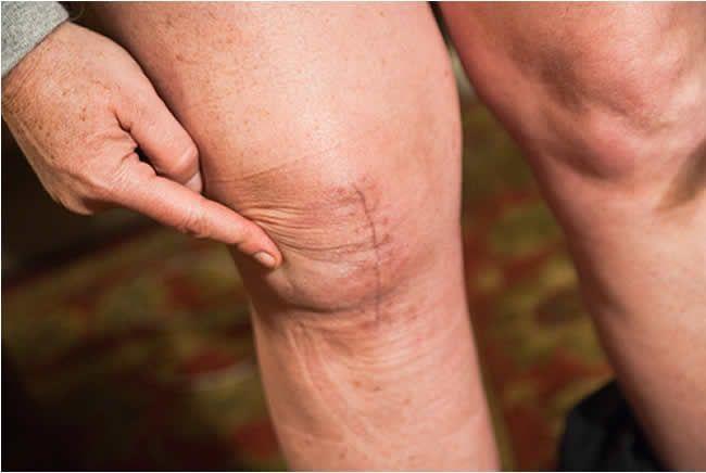 Tipy, ako predísť bolestiam v kolenách