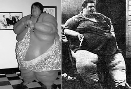The former taxi driver had always been unusually heavy, reaching 400 lbs. in 1963, 700 lbs. in 1966, and 975 lbs. in 1976, but he claimed to have been handicapped, in no way, by his size until a 500-calorie diet sapped his muscular strength and left him on the brink of death. At his peak in 1978, Jon Brower Minnoch tipped the scales at an estimated 635 kilograms, or 1397 pounds, or if you prefer, 100 stone.    He passed away on on September 10, 1983 weighing 362 kilograms or 796 pounds…