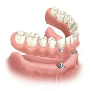 Overdentures snap onto denture implants or in some circumstances maybe used over a patients remaining natural teeth. Visit: http://smilecorp.com/dental-prosthesis/