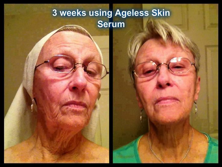 Ageless Serum Customer