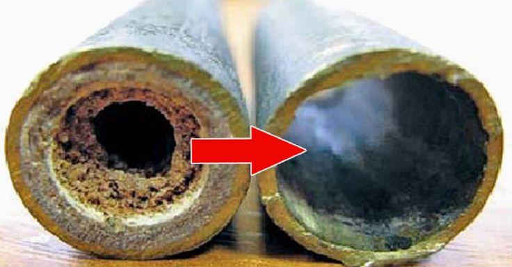 Upchanékanalizačné potrubie – problém, ktorý sa zvyčajne vyskytuje v domácnostiach, kde sú odpady a vykurovacie systémy eštez dôb sovietskej éry. Všetci dobre vieme, že takéto systémy sa na Slovensku ešte stále vyskytujú. Upchanie či zápach z odtoku však viete vyriešiť veľmi jednoducho, iba za pomoci týchto surovín. Na prečistenie potrubia budete potrebovať: 250 g jedlej …