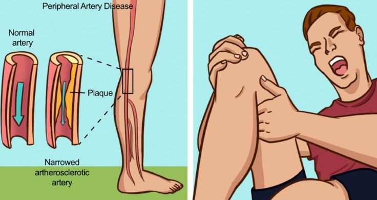 Tiredness while walking and cramping or pain in the lower extremities are usually signs that you may have PAD or peripheral artery disease. According to the American Heart Association (AHA), the disease often goes untreated because doctors can mistake it for something else. Hence, it is of great importance to understand the signs and symptoms …