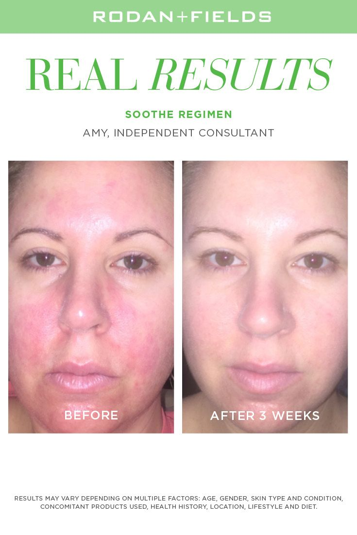 Soothe    when your face can't take it anymore | Rodan +