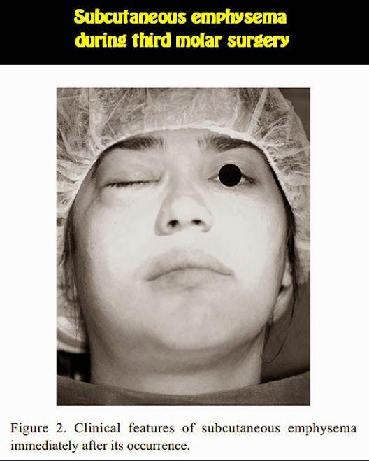 Subcutaneous emphysema during third molar surgery: a case report | OVI Dental