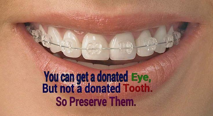 Preserve them!