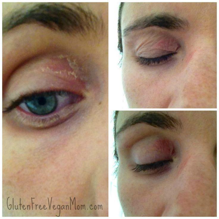 Makeup For Allergy Eyes Makeupviewco Eye Makeup Allergy Eye