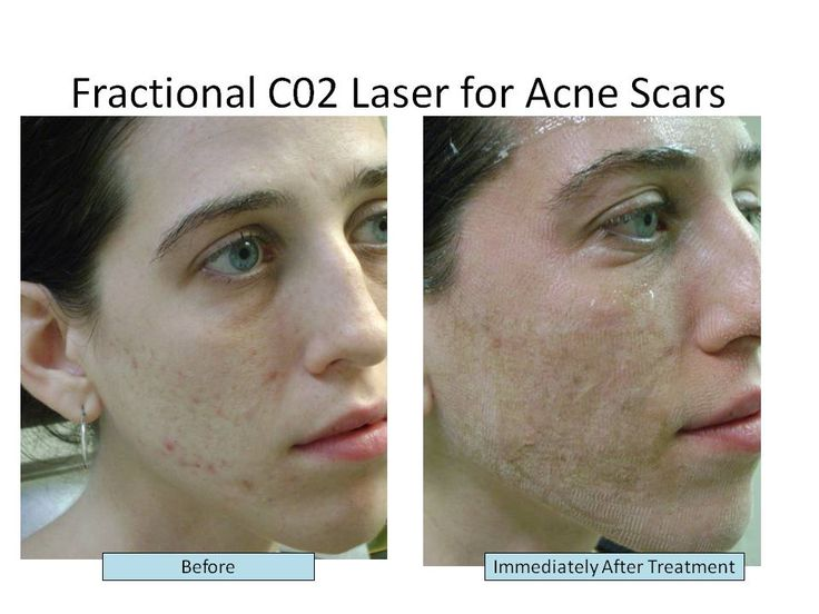 images on before and after acne scarring surgeries | Another Picture of acne scar removal surgery before and after: