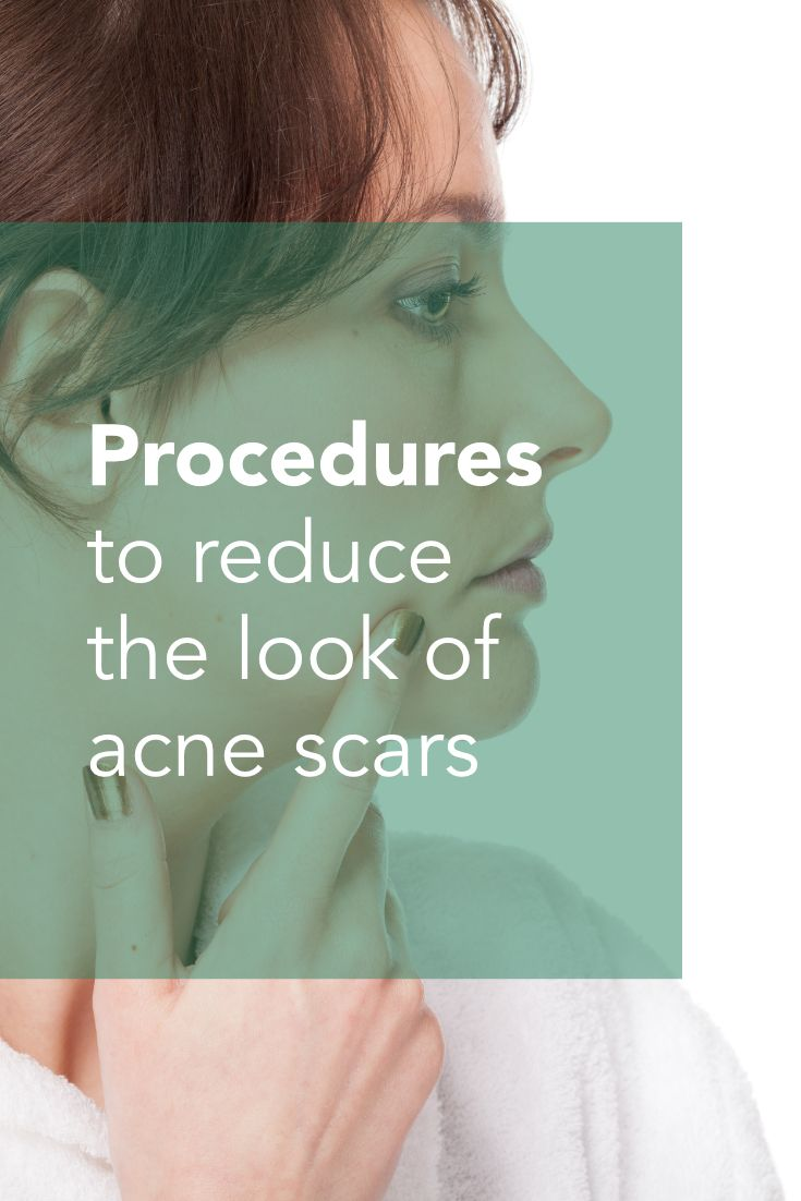 Treating Acne Scars   Although it is virtually impossible to eliminate acne scarring, the appearance of the skin can certainly be improved.  Here are two ways to reduce the look of acne scars: ZO 3-Step Peel & Fractional CO2 Laser Resurfacing