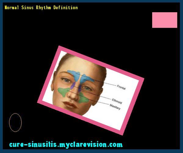 Normal Sinus Rhythm Definition 202639 - Cure Sinusitis