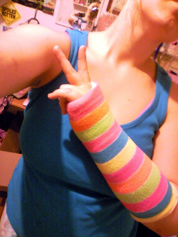 Neon sock as a cast cover broken arm wrist resources for Arm cast decoration ideas