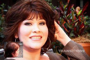 Female Hair Loss Treatment   http://eldoradohair.com