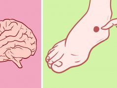 První příznaky cévní mozkové příhody u žen. Je třeba jednat rychle!