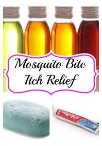 30 Mosquito Bite Itch Relief Tips - Searching 4 Savings
