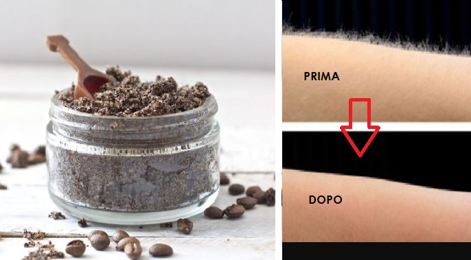 Per eliminare i peli superflui ora hai un'alternativa valida e infallibile...Scopri come puoi aiutarti con caffè e bicarbonato o pepe bianco e canfora!Leggi