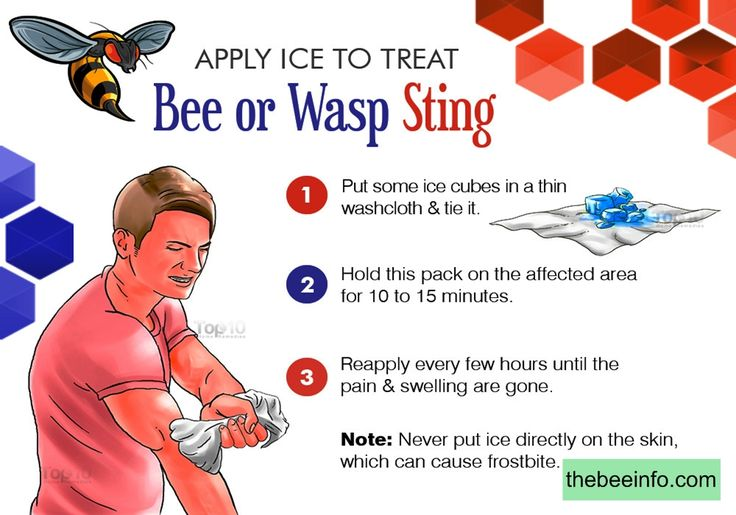 Bumble Bee Sting Treatment, Allergies Reaction, And Prevention.