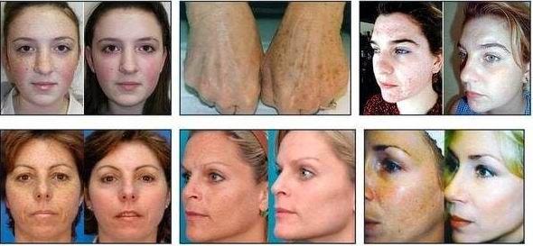 Die Wirkung der Creme Welltox auf die Pigmentierung Whitening Creme Welltox aus Pigmentflecken und Sommersprossen