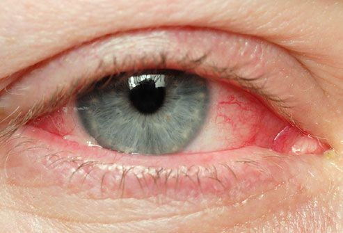 WebMD shows pictures of what pinkeye (conjunctivitis) symptoms look like around the eyes. Learn why it's important to know which type of pinkeye you have, as well as the causes and treatments.
