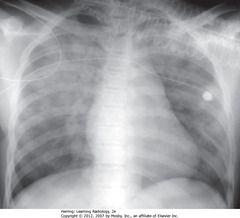 DIFFUSE AIRSPACE DISEASE - PULMONARY ALVEOLAR EDEMA • Fluffy, hazy, cloudlike opacities through both lungs, mainly in upper lobes • Pulmonary alveolar edema