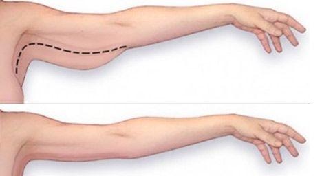 In questo articolo troverai preziosi consigli per eliminare il grasso in eccesso dalle braccia, un [Leggi Tutto...]