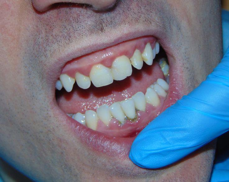 detartraj 07   dentist-who