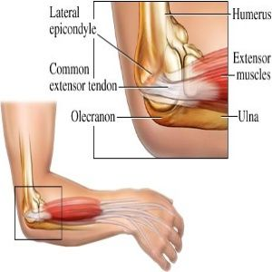Pain in your elbow in and out of the day? You may have tennis elbow in your joint which is from infalmmation. Learn more about tennis elbow and how to treat it here! I got mine from rock mining of all places! Damn pick ax!