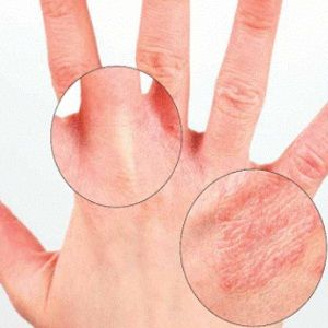 Natural Ways To Treat Dry Hands