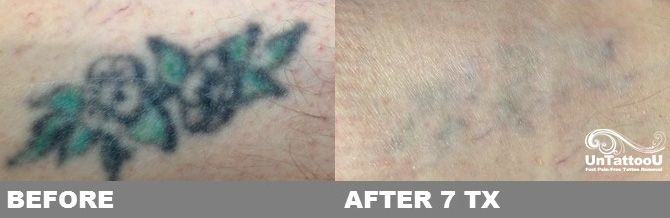 Untattoou laser tattoo removal before after 7 for Picosure tattoo removal maryland