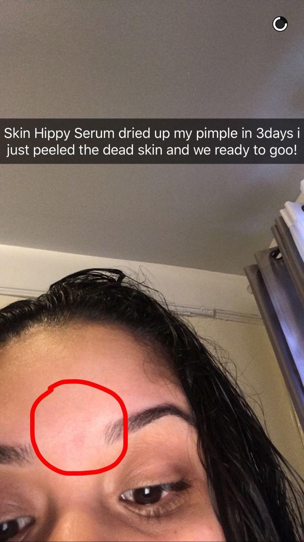 Skin Hippy Hemp Oil Serum contains essential oils and ...