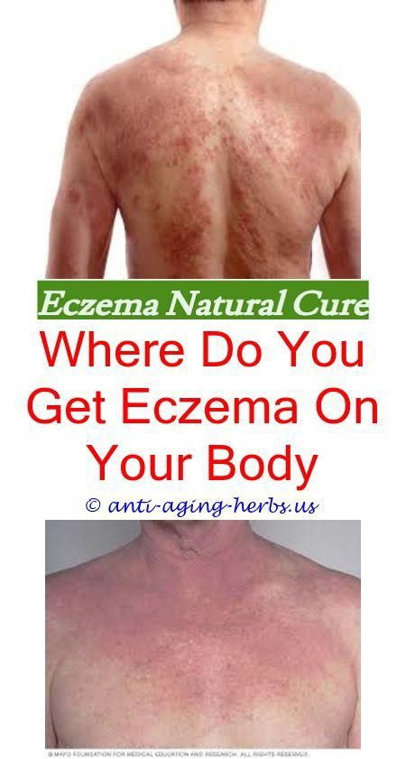 Ayurvedic Treatment For Eczema Eczema Treatment While Pregnant