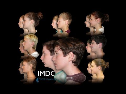 Before & after jaw distraction surgery before braces with IMDO for dental overbite - YouTube