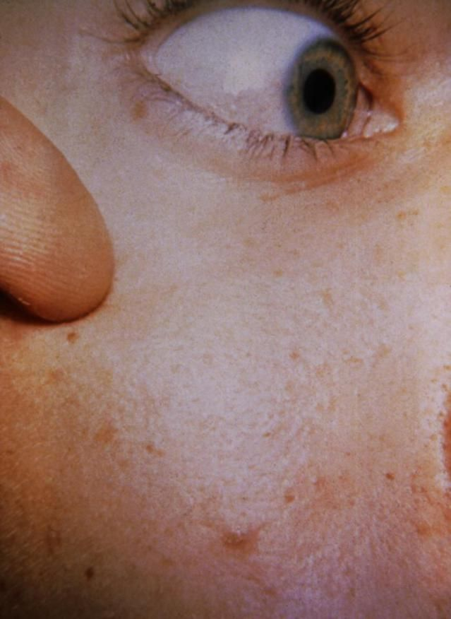 Rashes: Rocky Mountain Spotted Fever