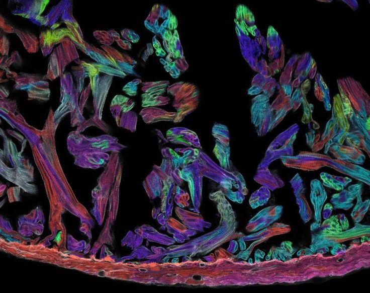 Una sección a través del corazón del Pez Zebra con células musculares identificadas a través de un sistema multicolor. La imagen fue capturada con un microscopio confocal  Leica TCS SP5. Las muestras fueron adquiridas usando los láseres de 458 nm, 515 nm, y 561 nm para excitar las proteínas fluorescentes CFP, YFP, y RFP, respectivamente. Los canales fueron grabados secuencialmente, combinados e importados a Adobe Photoshop. (por Vikas Gupta).