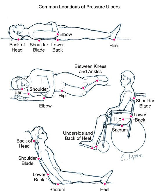 Spinal cord injury(Quadriplegics or Paraplegics) is a type of severe paralysis.Here i explain some of the body phenomena, which begins after injury.