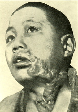 The damage of atomic bomb which Japanese Hiroshima received.  Boy suffering from keloids.