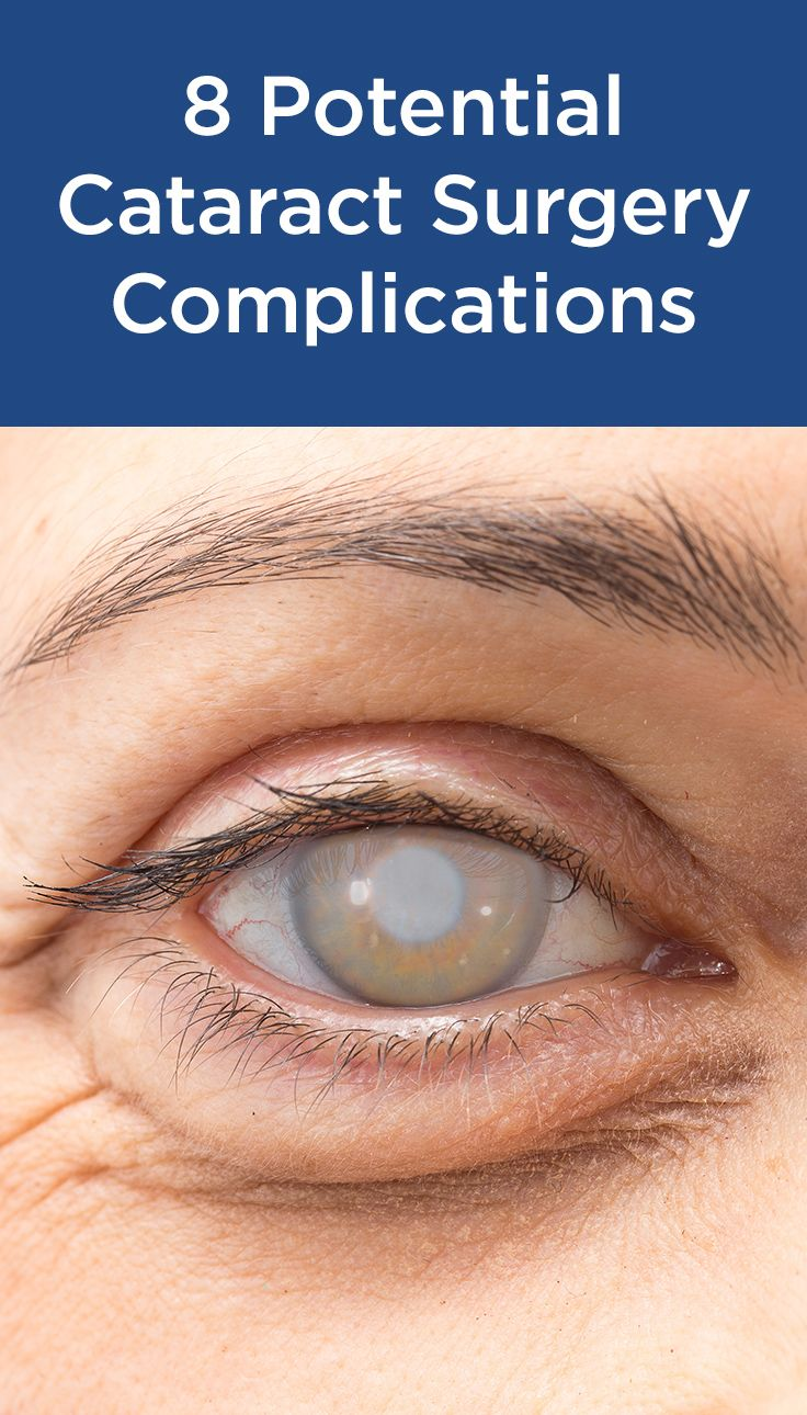 Certain Drugs May Cause Cataract Surgery Complications