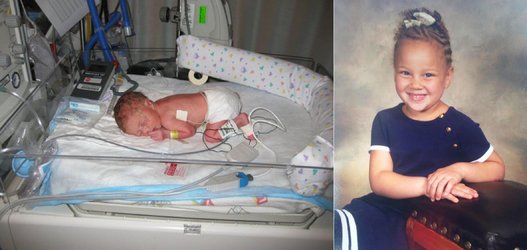 Meet 51 Babies Who Were Born Too Soon -- And See How Far ...