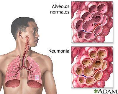 Imagen que describe unos alveolos sanos y otros infectados
